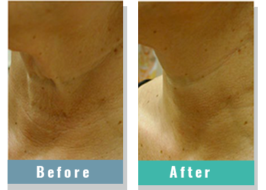 Picture for category Non Ablative Skin Resurfacing